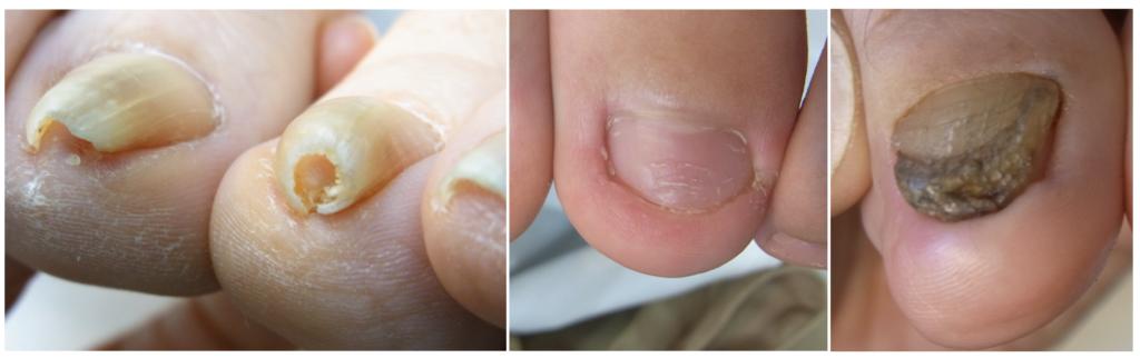 爪の代表的トラブル巻き爪や陥入爪の写真